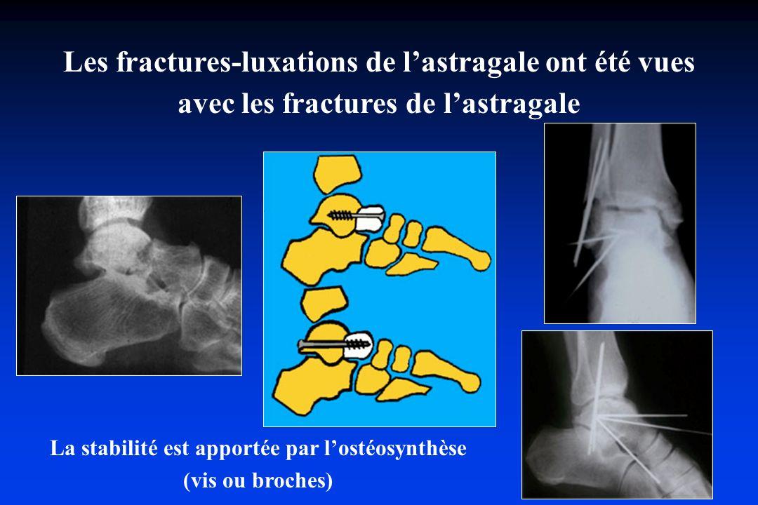 Les fractures-luxations de l'astragale ont été vues