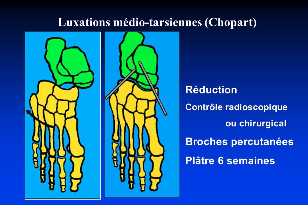 Luxations médio-tarsiennes (Chopart)