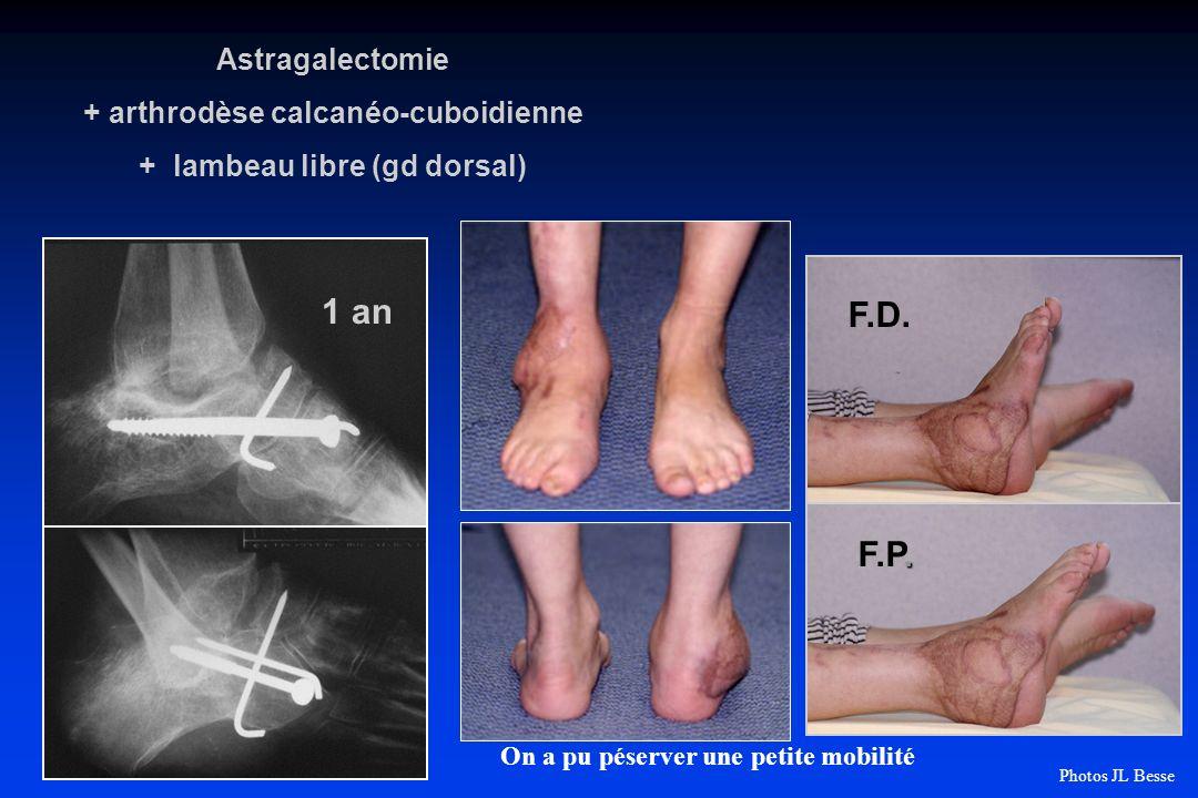+ arthrodèse calcanéo-cuboidienne + lambeau libre (gd dorsal)