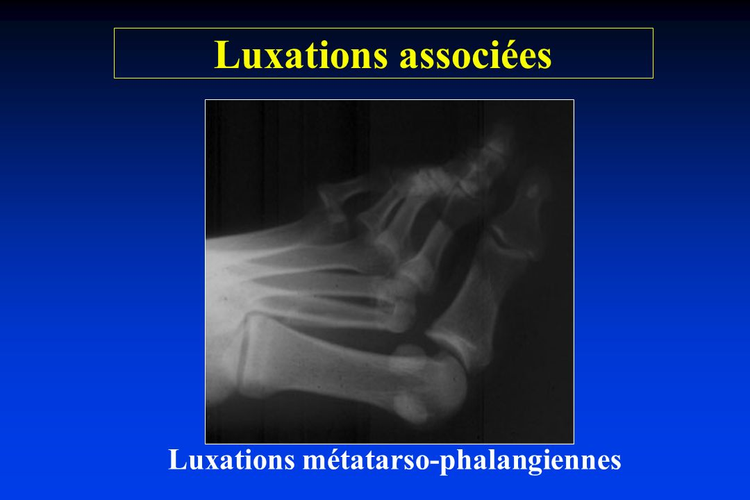 Luxations métatarso-phalangiennes