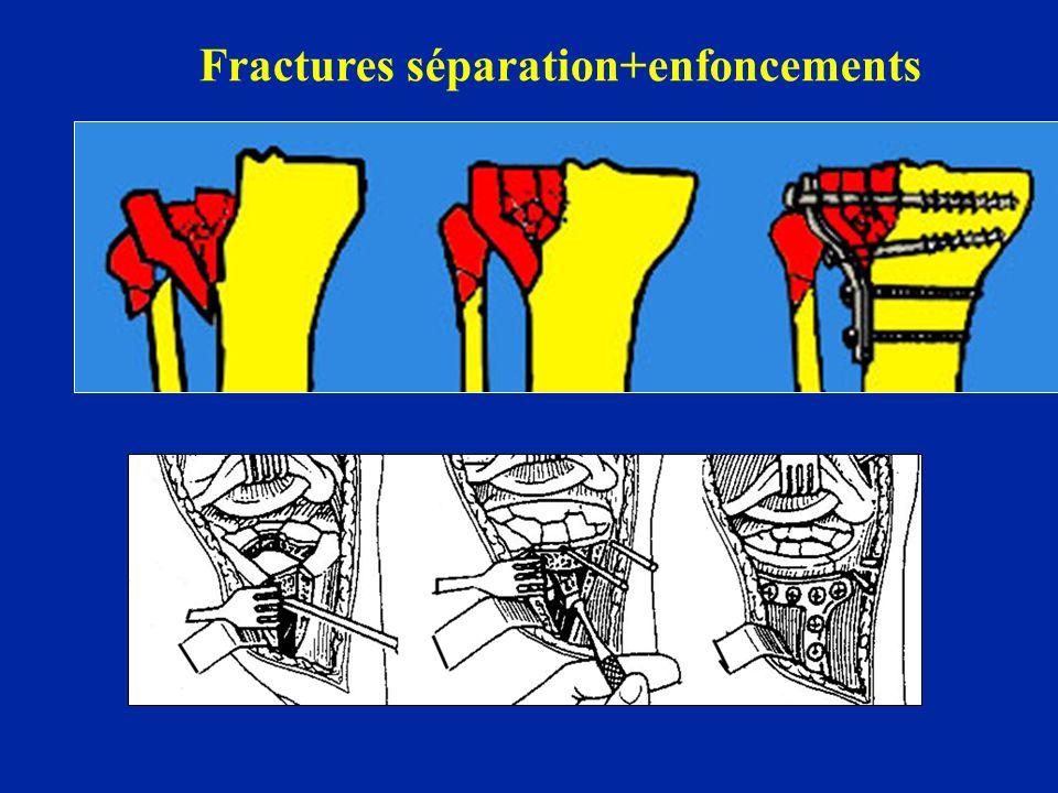 Fractures séparation+enfoncements