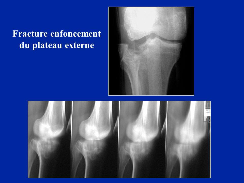 Fracture enfoncement du plateau externe