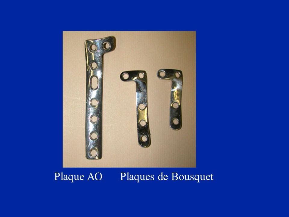Plaque AO Plaques de Bousquet