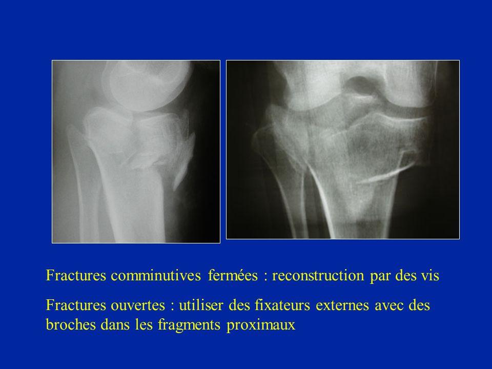 Fractures comminutives fermées : reconstruction par des vis