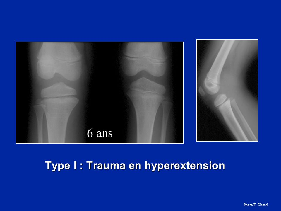 6 ans Type I : Trauma en hyperextension Photo F. Chotel
