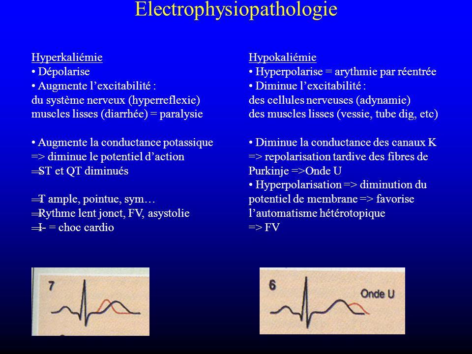Electrophysiopathologie