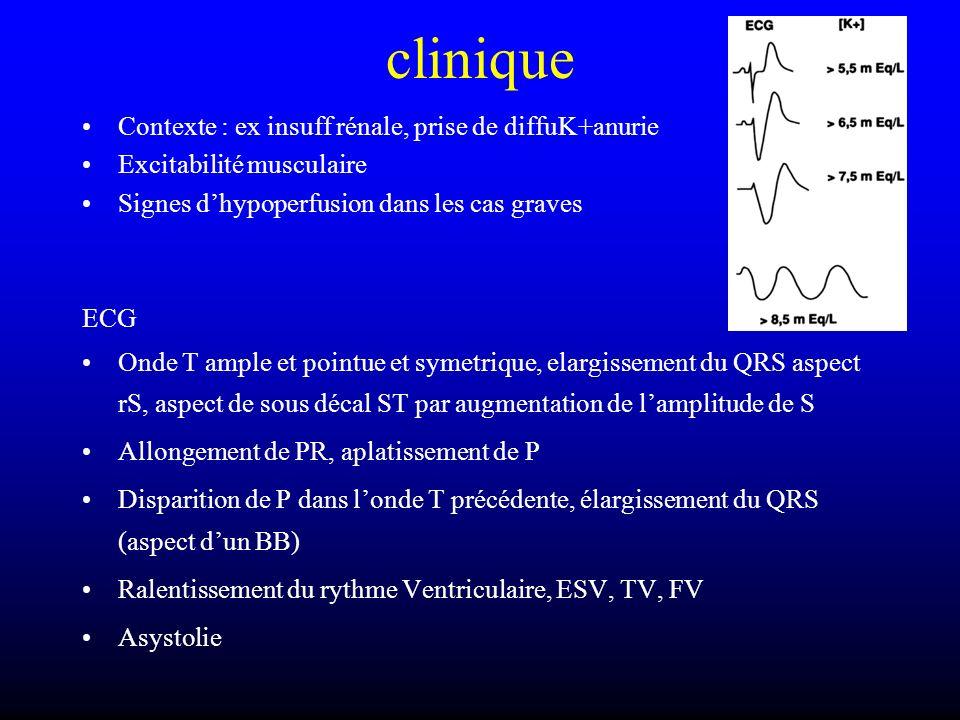 clinique Contexte : ex insuff rénale, prise de diffuK+anurie
