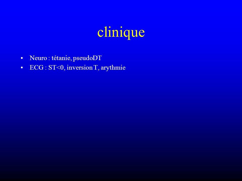 clinique Neuro : tétanie, pseudoDT
