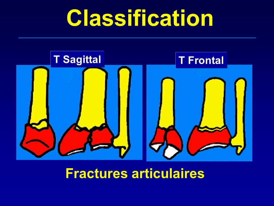 Classification T Sagittal T Frontal Fractures articulaires