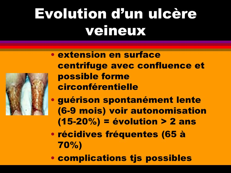 Evolution d'un ulcère veineux