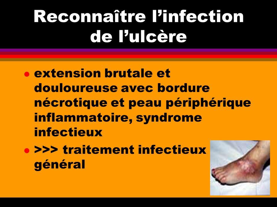 Reconnaître l'infection de l'ulcère