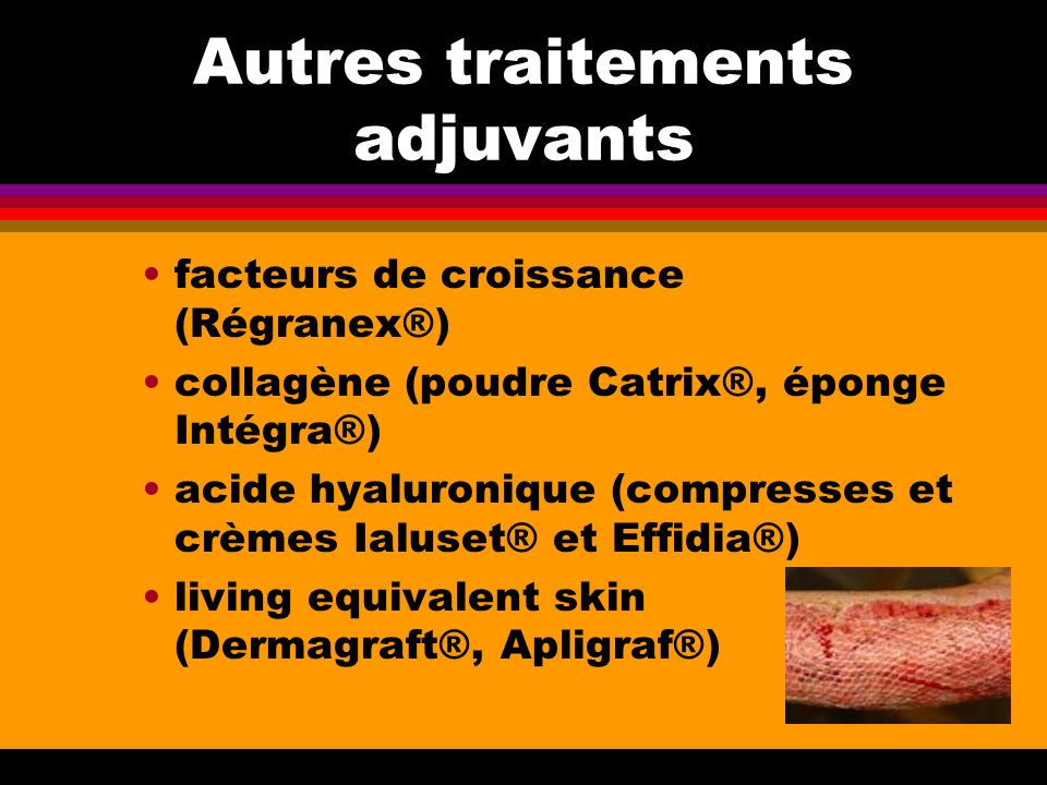 Autres traitements adjuvants