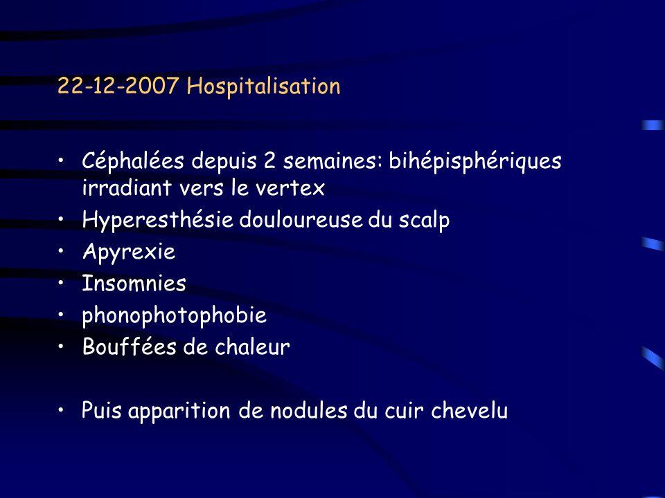 22-12-2007 HospitalisationCéphalées depuis 2 semaines: bihépisphériques irradiant vers le vertex. Hyperesthésie douloureuse du scalp.