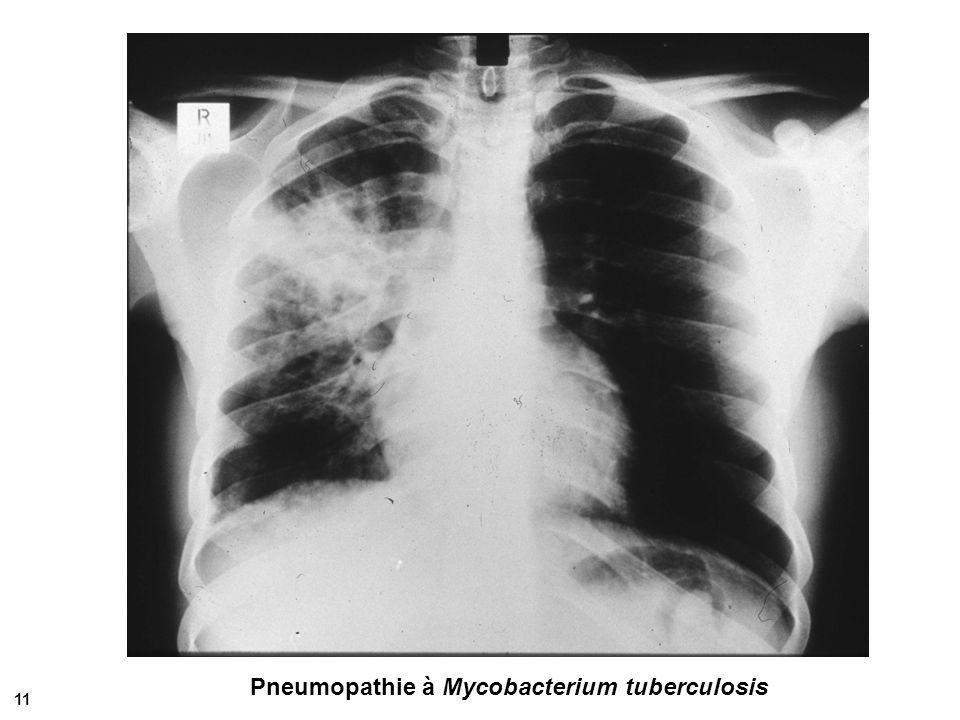 Pneumopathie à Mycobacterium tuberculosis