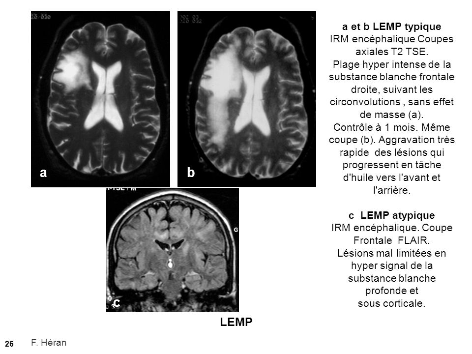 a et b LEMP typique IRM encéphalique Coupes axiales T2 TSE