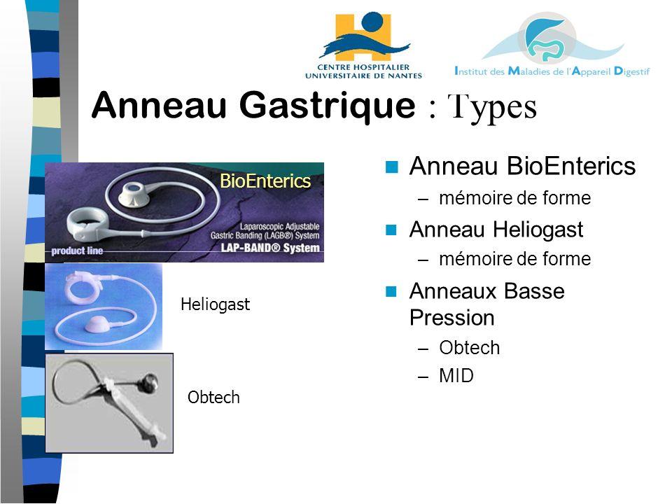 Anneau Gastrique : Types