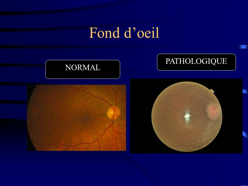 Fond d'oeil PATHOLOGIQUE NORMAL