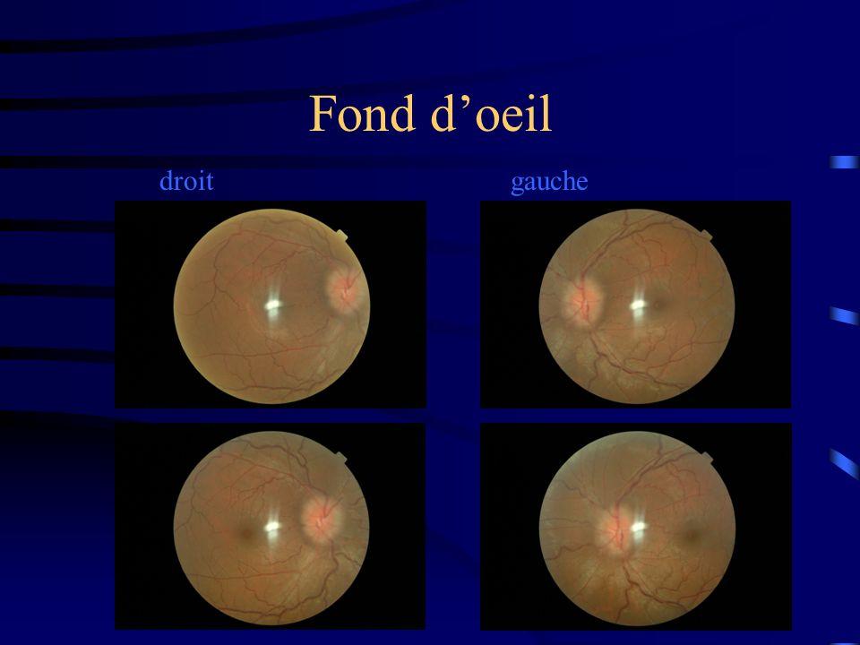 Fond d'oeil droit gauche