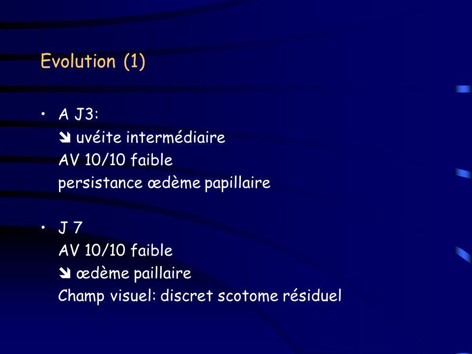 Evolution (1) A J3:  uvéite intermédiaire AV 10/10 faible