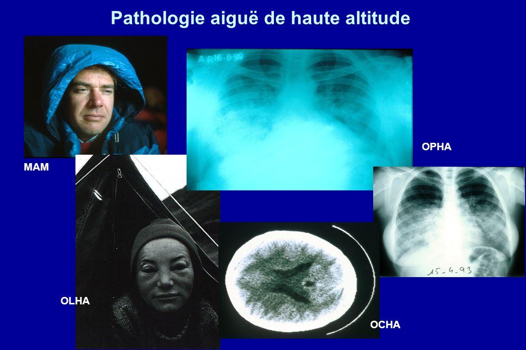 Pathologie aiguë de haute altitude