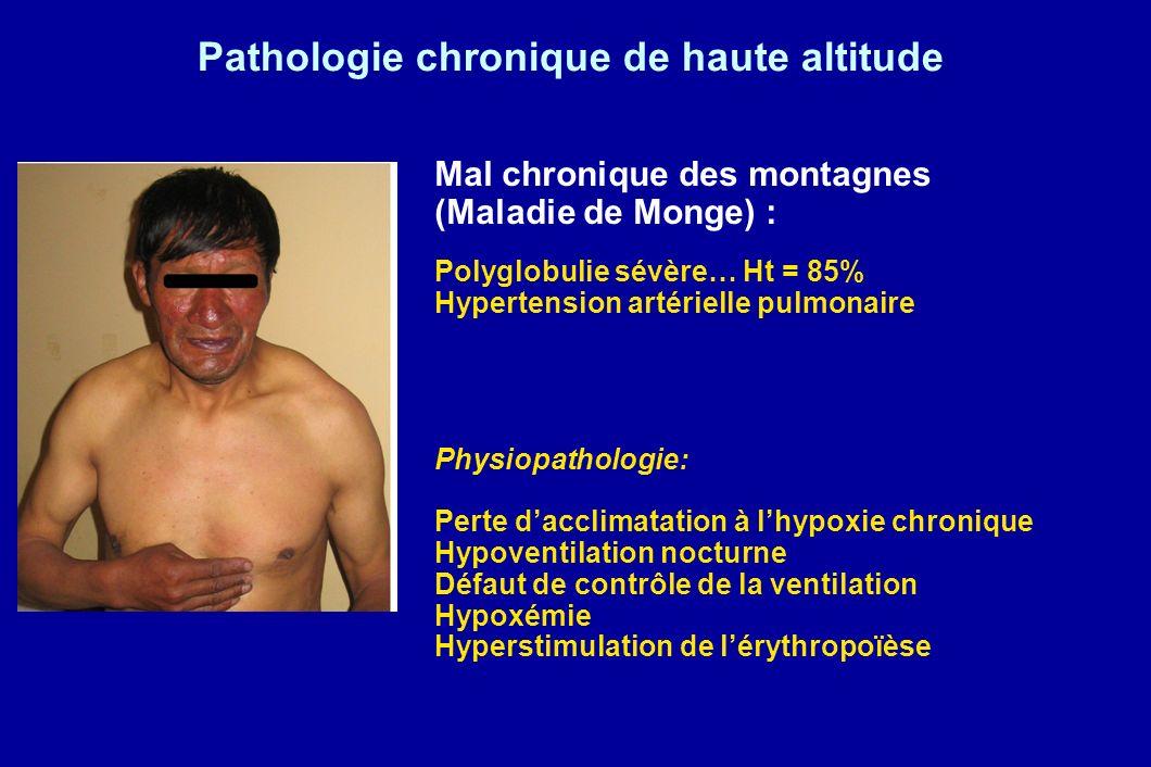 Pathologie chronique de haute altitude