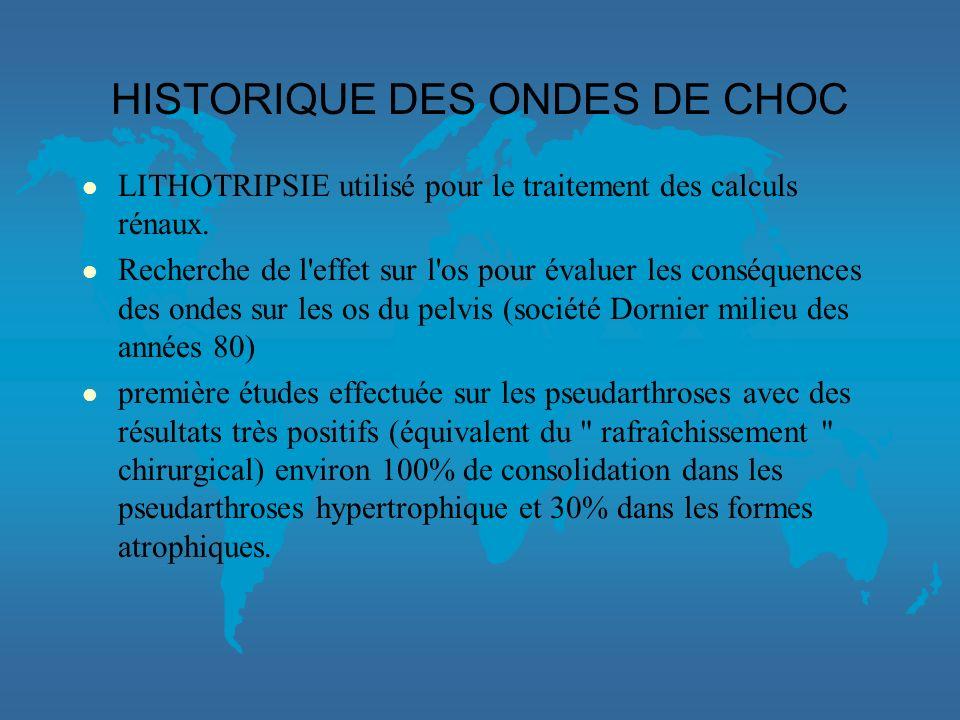 HISTORIQUE DES ONDES DE CHOC