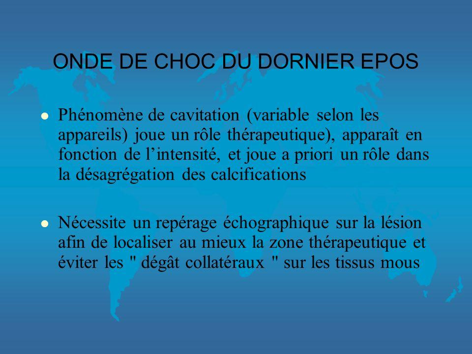 ONDE DE CHOC DU DORNIER EPOS
