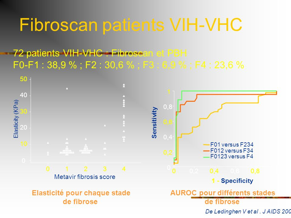 Fibroscan patients VIH-VHC