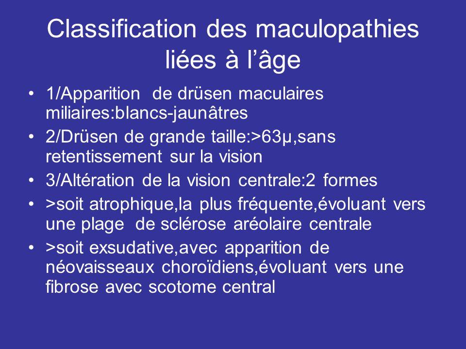 Classification des maculopathies liées à l'âge
