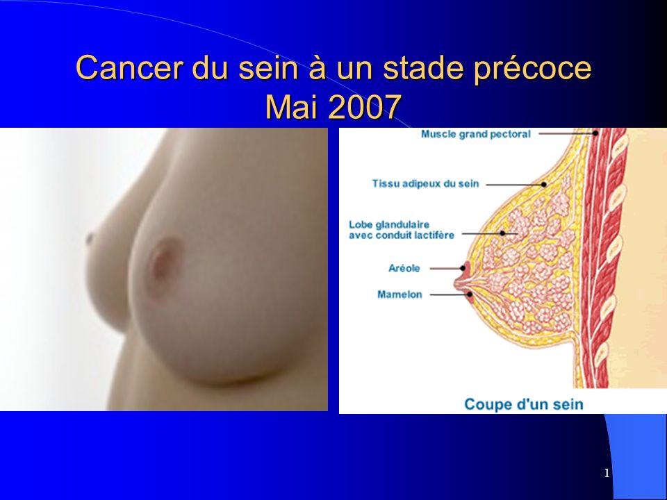 Cancer du sein à un stade précoce Mai 2007
