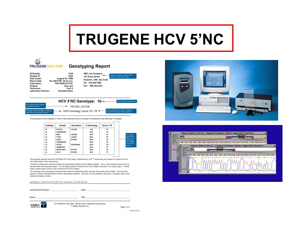 TRUGENE HCV 5'NC