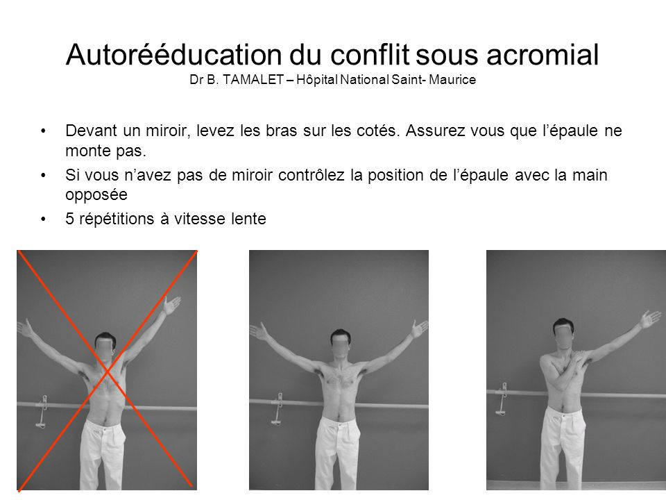 Autorééducation du conflit sous acromial Dr B