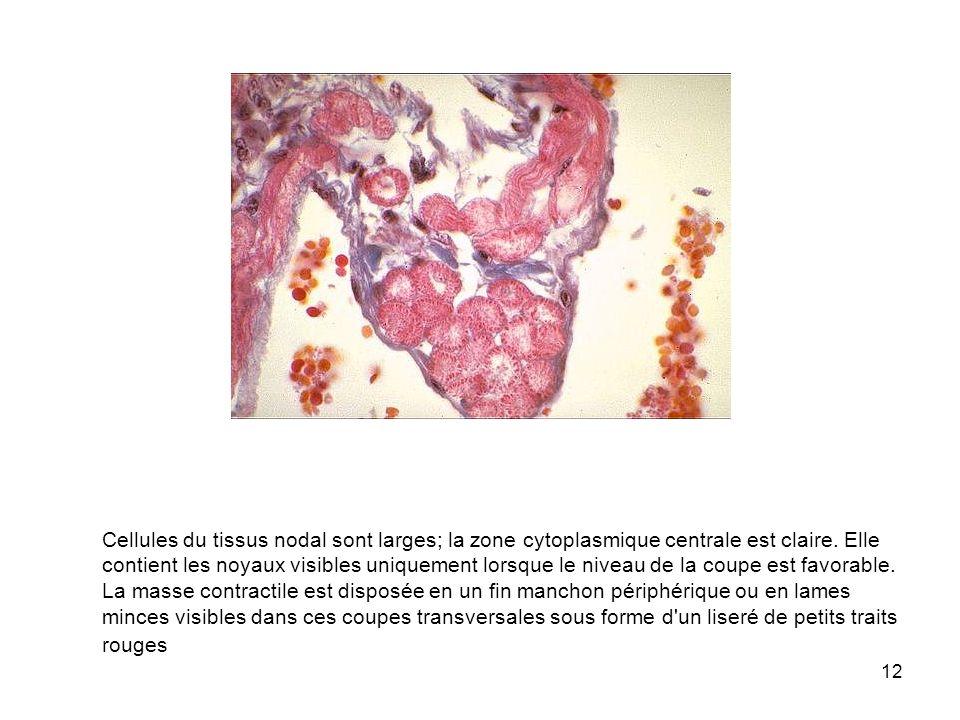Cellules du tissus nodal sont larges; la zone cytoplasmique centrale est claire.