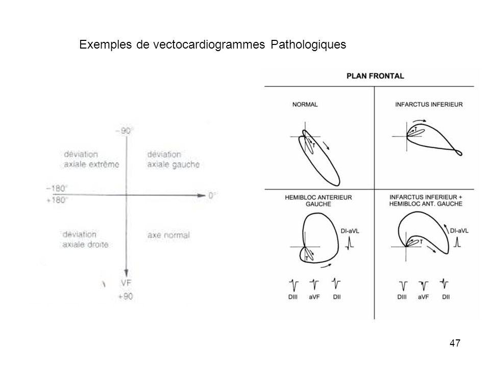 Exemples de vectocardiogrammes Pathologiques