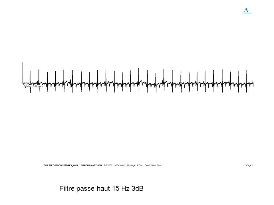 Filtre passe haut 15 Hz 3dB