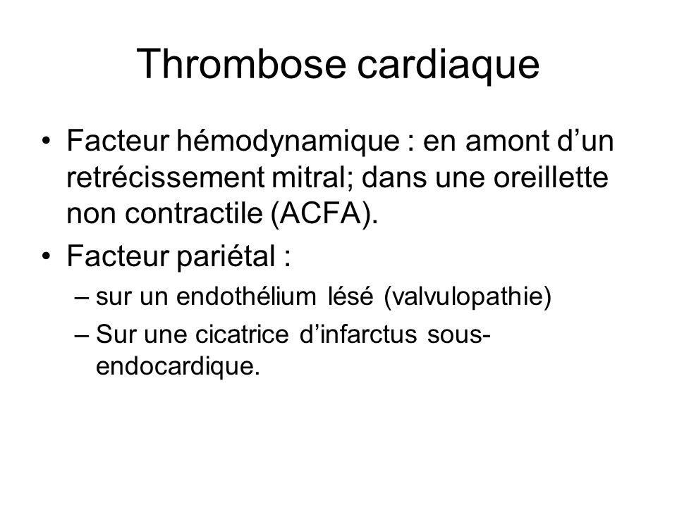 Thrombose cardiaque Facteur hémodynamique : en amont d'un retrécissement mitral; dans une oreillette non contractile (ACFA).