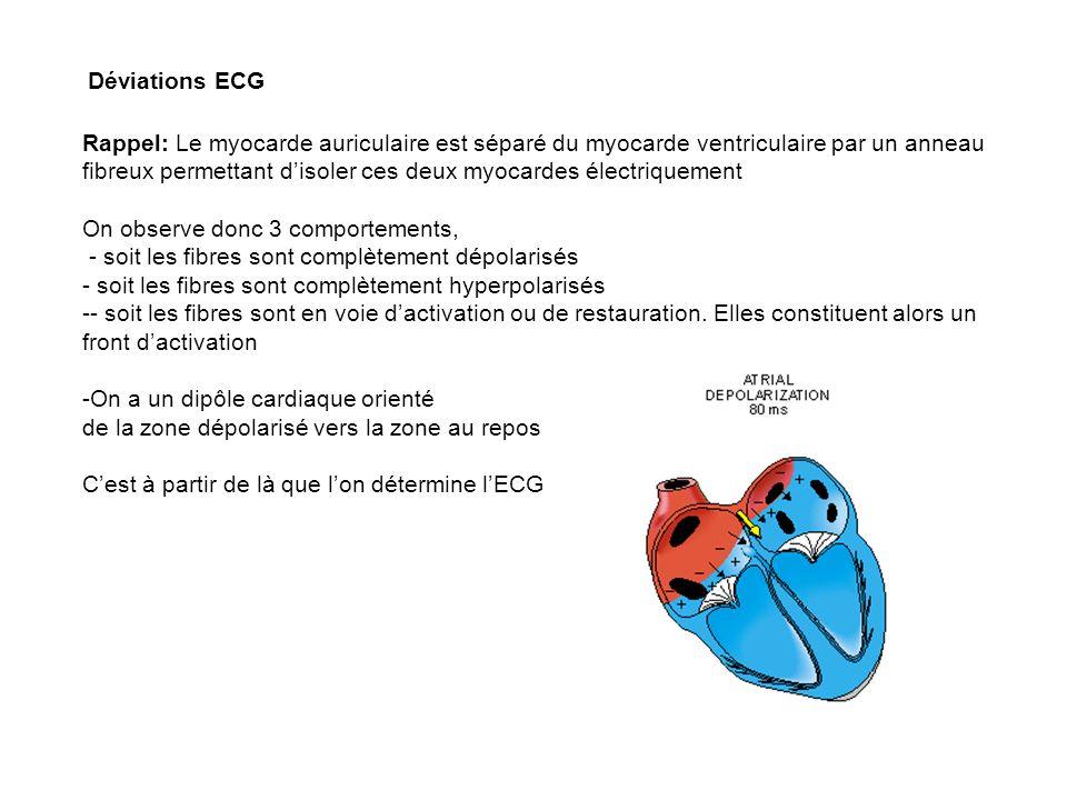 Déviations ECG