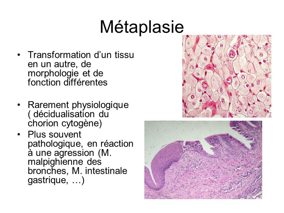 Métaplasie Transformation d'un tissu en un autre, de morphologie et de fonction différentes.