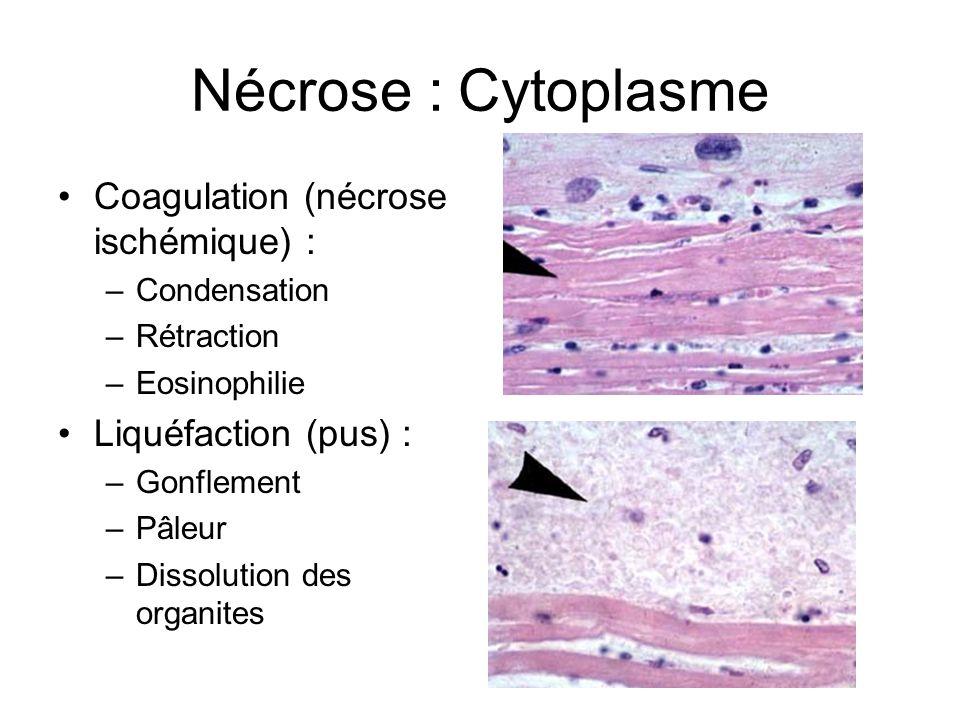 Nécrose : Cytoplasme Coagulation (nécrose ischémique) :