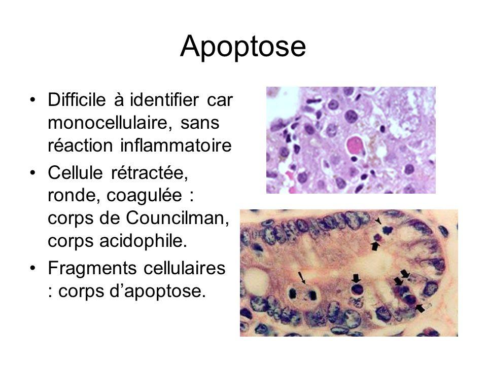 Apoptose Difficile à identifier car monocellulaire, sans réaction inflammatoire.