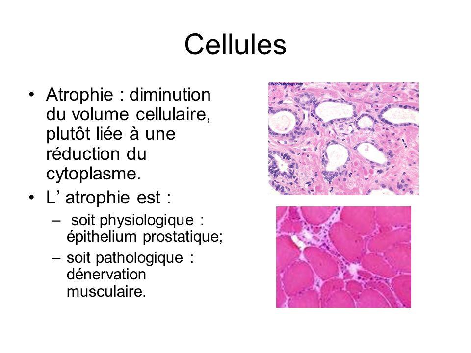 Cellules Atrophie : diminution du volume cellulaire, plutôt liée à une réduction du cytoplasme. L' atrophie est :