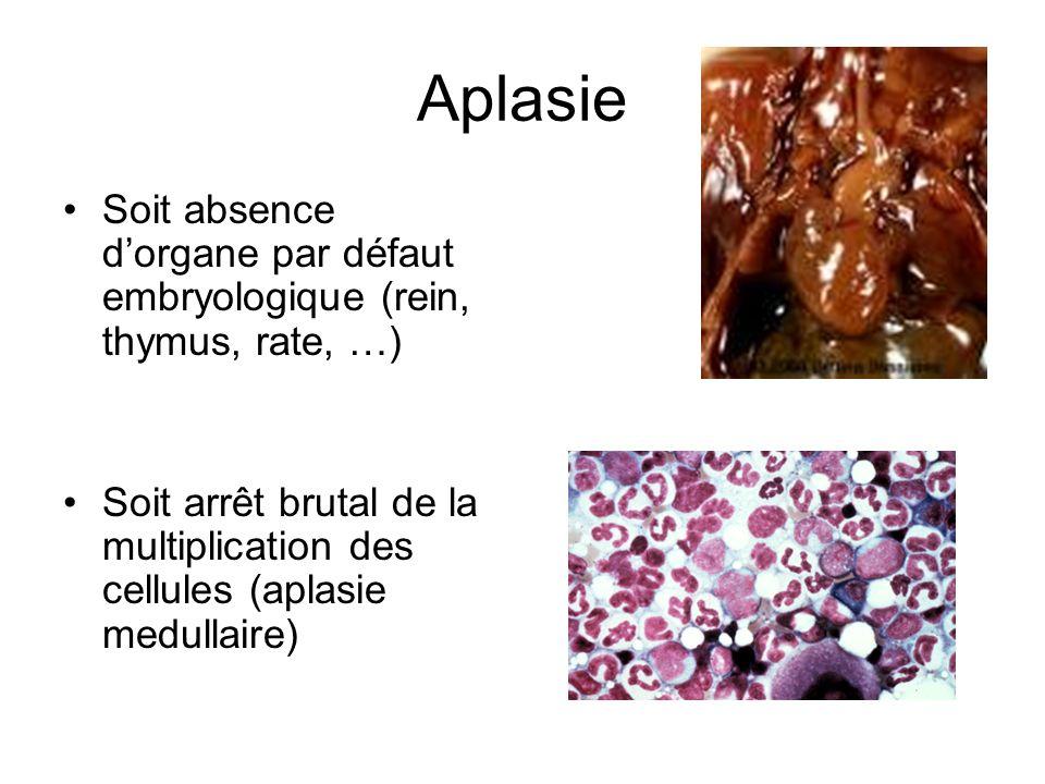 AplasieSoit absence d'organe par défaut embryologique (rein, thymus, rate, …)
