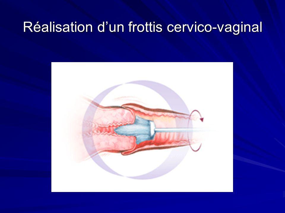 Réalisation d'un frottis cervico-vaginal