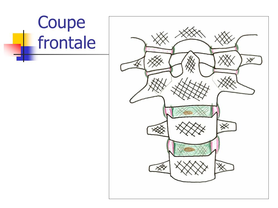 Coupe frontale