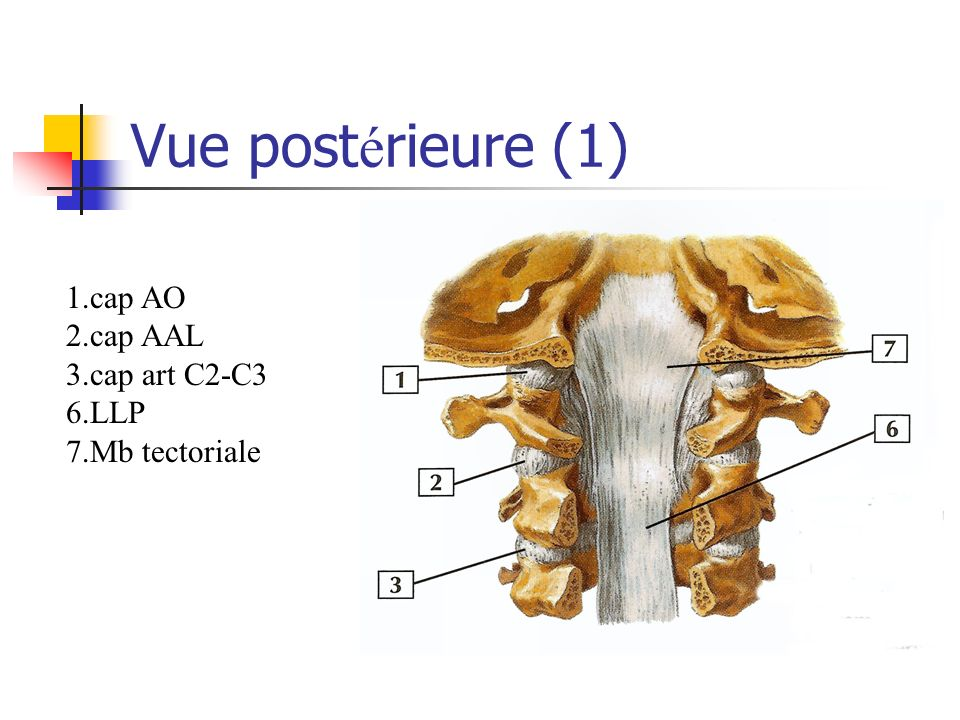 Vue postérieure (1) 1.cap AO 2.cap AAL 3.cap art C2-C3 6.LLP
