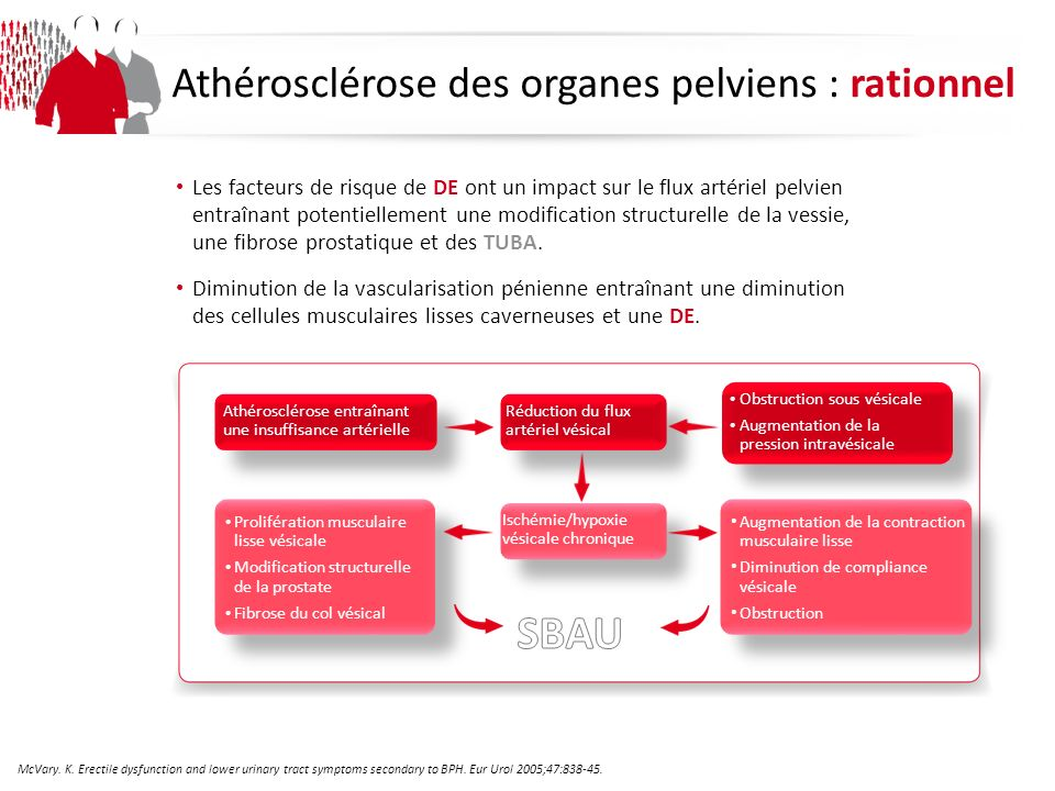 SBAU Athérosclérose des organes pelviens : rationnel