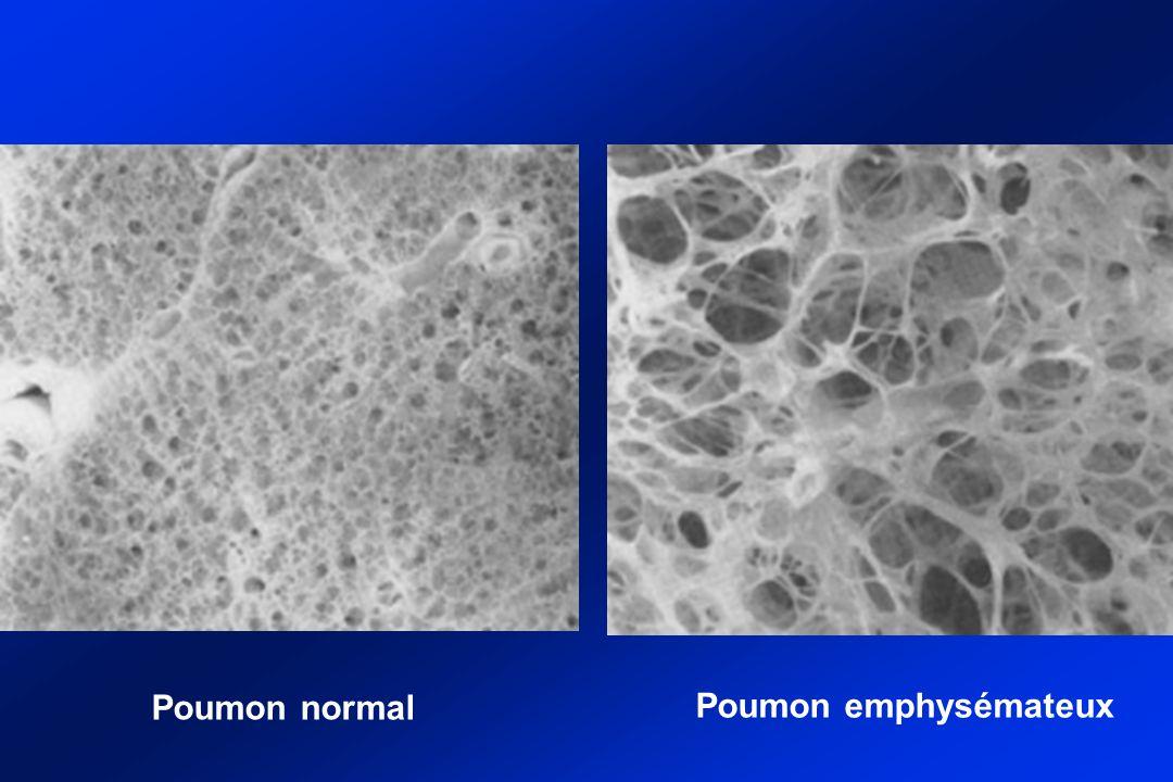 Poumon normal Poumon emphysémateux