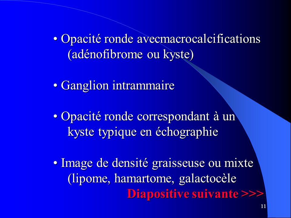 Opacité ronde avecmacrocalcifications (adénofibrome ou kyste)
