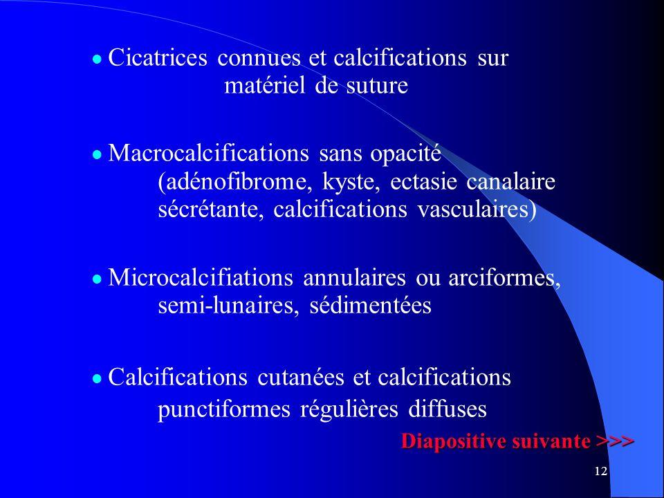 Cicatrices connues et calcifications sur matériel de suture
