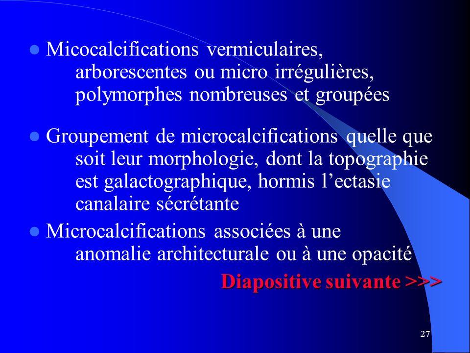 Micocalcifications vermiculaires, arborescentes ou micro irrégulières, polymorphes nombreuses et groupées